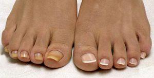 Грибок на ногах симптомы - начальная запущенная стадия