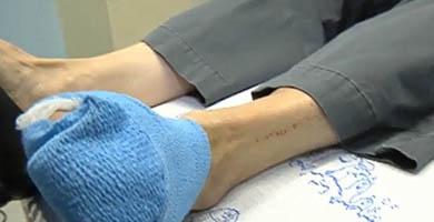 Лечение грибка кожи ног запущенная форма