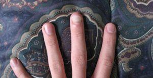 Дрожжевой грибок на ногтях ног лечение