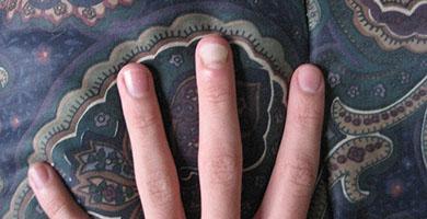 Дрожжевой грибок на ногтях — Грибок Ногтей