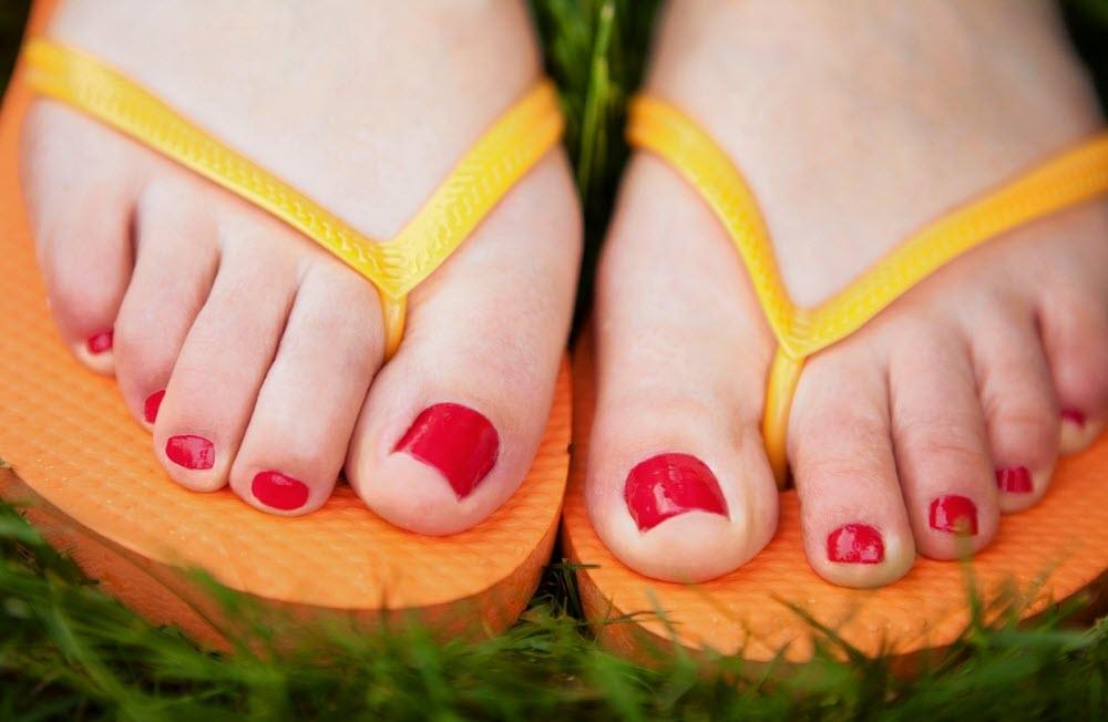 Как вылечить грибок между пальцами ног быстро народными средствами