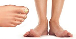 Грибок ногтей лечение мази