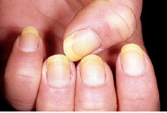 Появление грибка ногтей