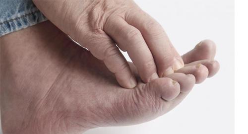 Зуд между пальцами ног чем лечить