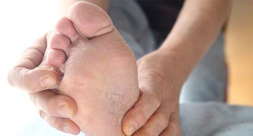 Лечение опрелости между пальцами ног