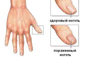 Грибок ногтя на большом пальце руки: симптомы и лечение