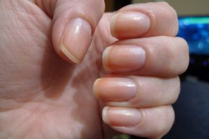 Пульс терапия при грибке ногтей
