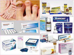 Таблица препаратов от грибка ногтей, стоп (ног) и рук, между пальцами