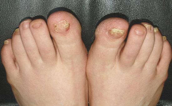 Лечение ногтя в харькове