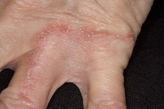 Грибок кожи вокруг ногтя на руках лечение