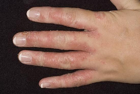 Как в америке лечат грибок ногтей