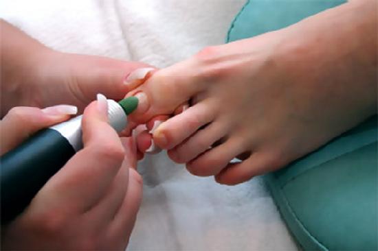 Цитросепт от грибка на ногах
