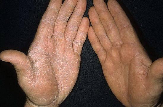 Флуконазол от ногтевого грибка инструкция по применению