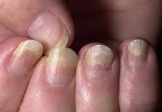 Отставание ногтя от ногтевого ложа