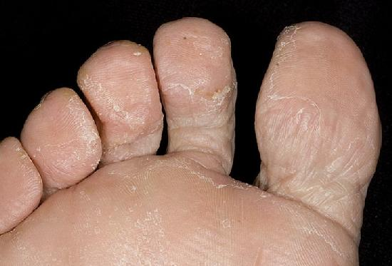 Мази от грибка на ногах недорогое отечественное