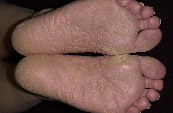 Грибок ногтей и как лечить