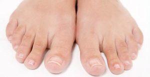 Онихомикоз ногтей: что это такое, фото, симптомы, лечение препаратами недорогими, но эффективными