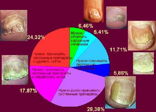 Как лечить поражение ногтевой пластины