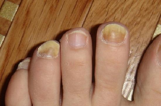 Заговоры степановой грибок на ногах