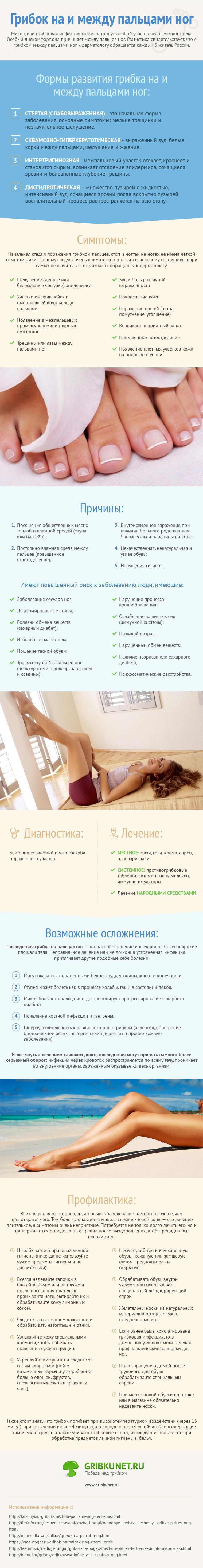 Инфографика - Лечение грибка на и между пальцами ног