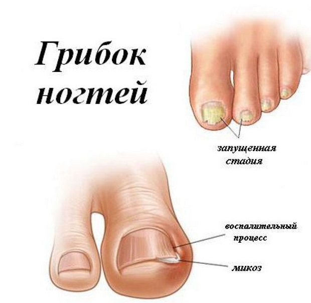 Лечение грибка на ногте ноги